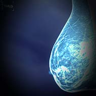Tzeveleki Surgery breast cancer 2